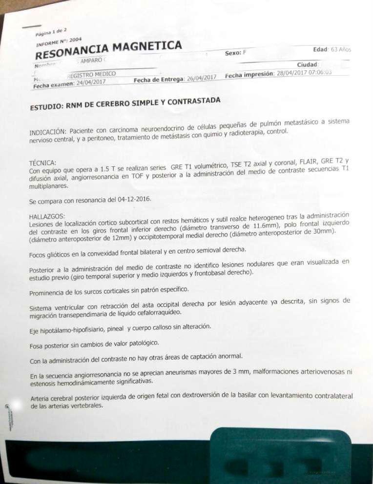LifEscozul® - Amparo 4 - Cáncer de Pulmon