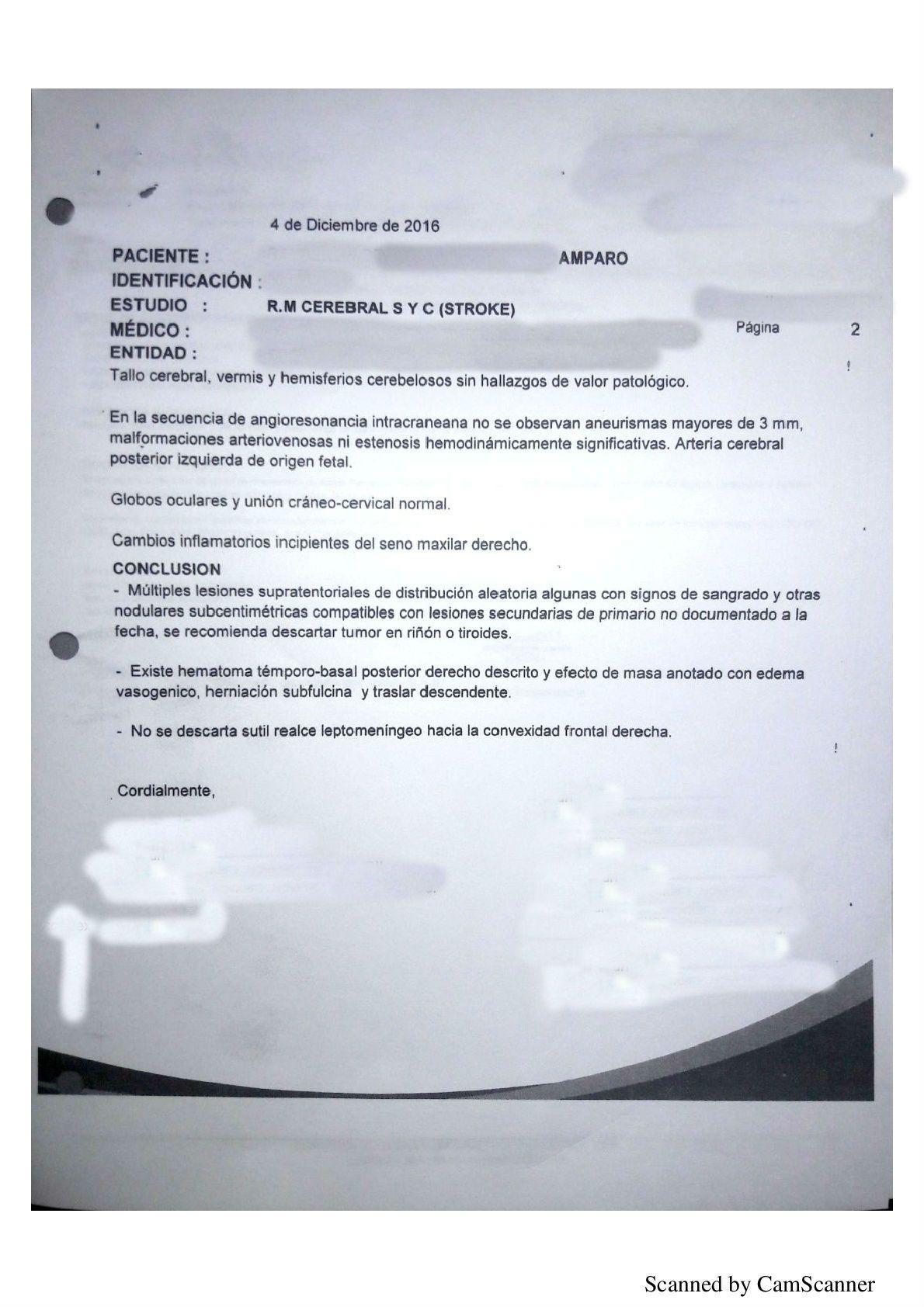 LifEscozul® - Amparo 6 - Cáncer de Pulmon
