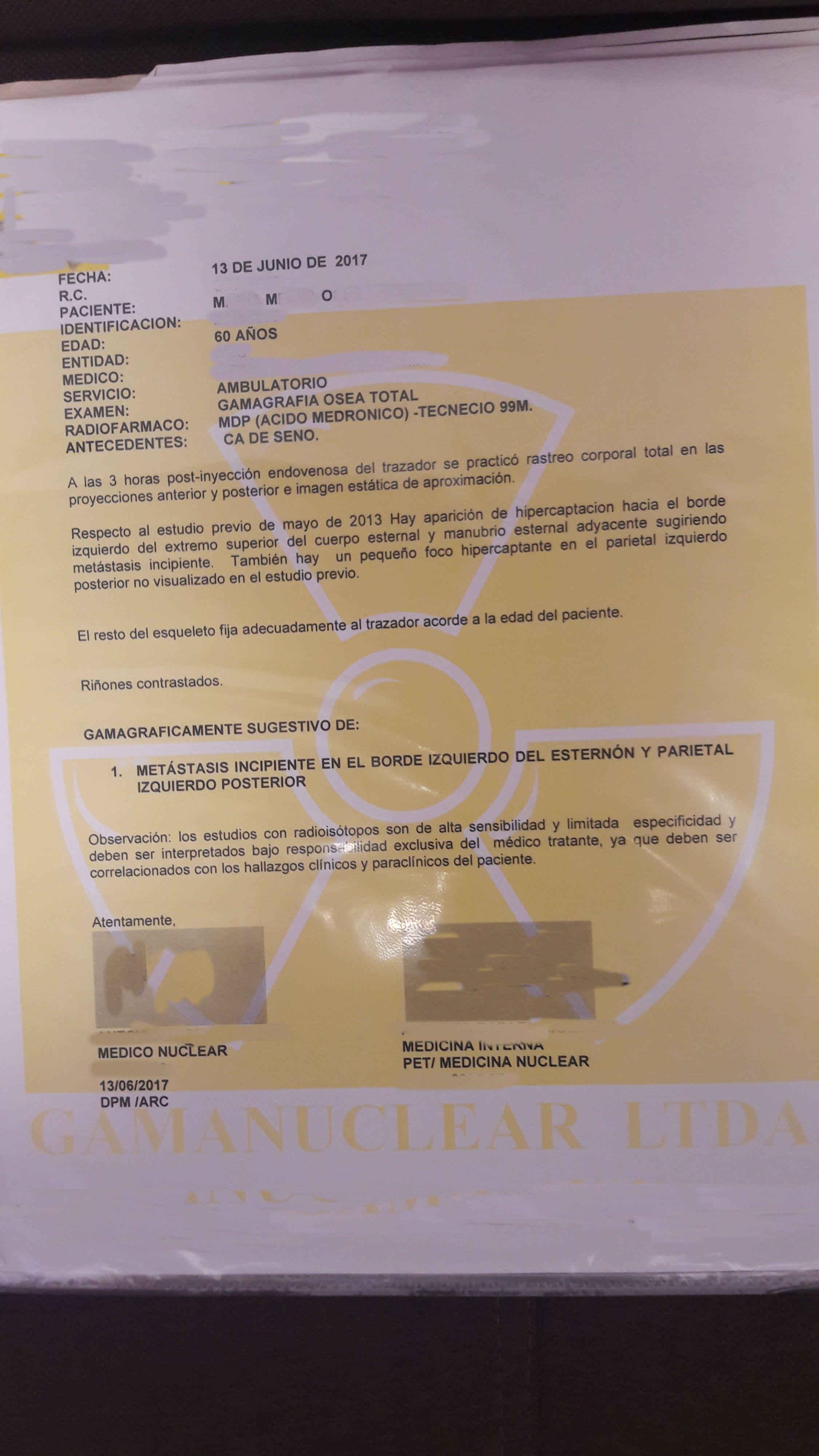 LifEscozul® - M.M.O. 2 - Cáncer de Mámas