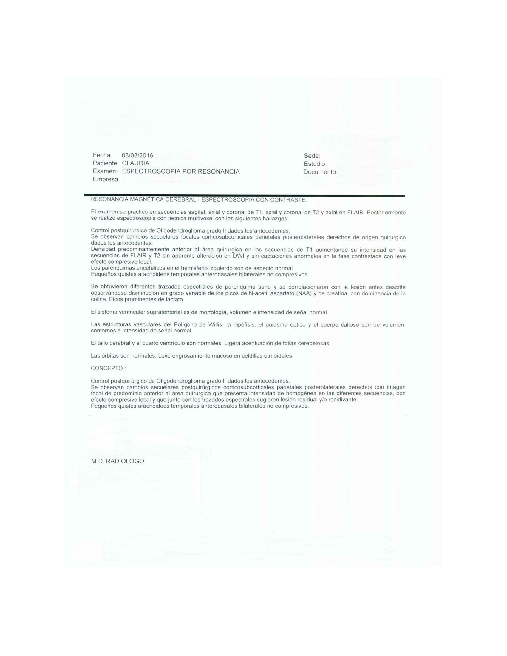 LifEscozul® - Claudia - Cáncer Cerebral