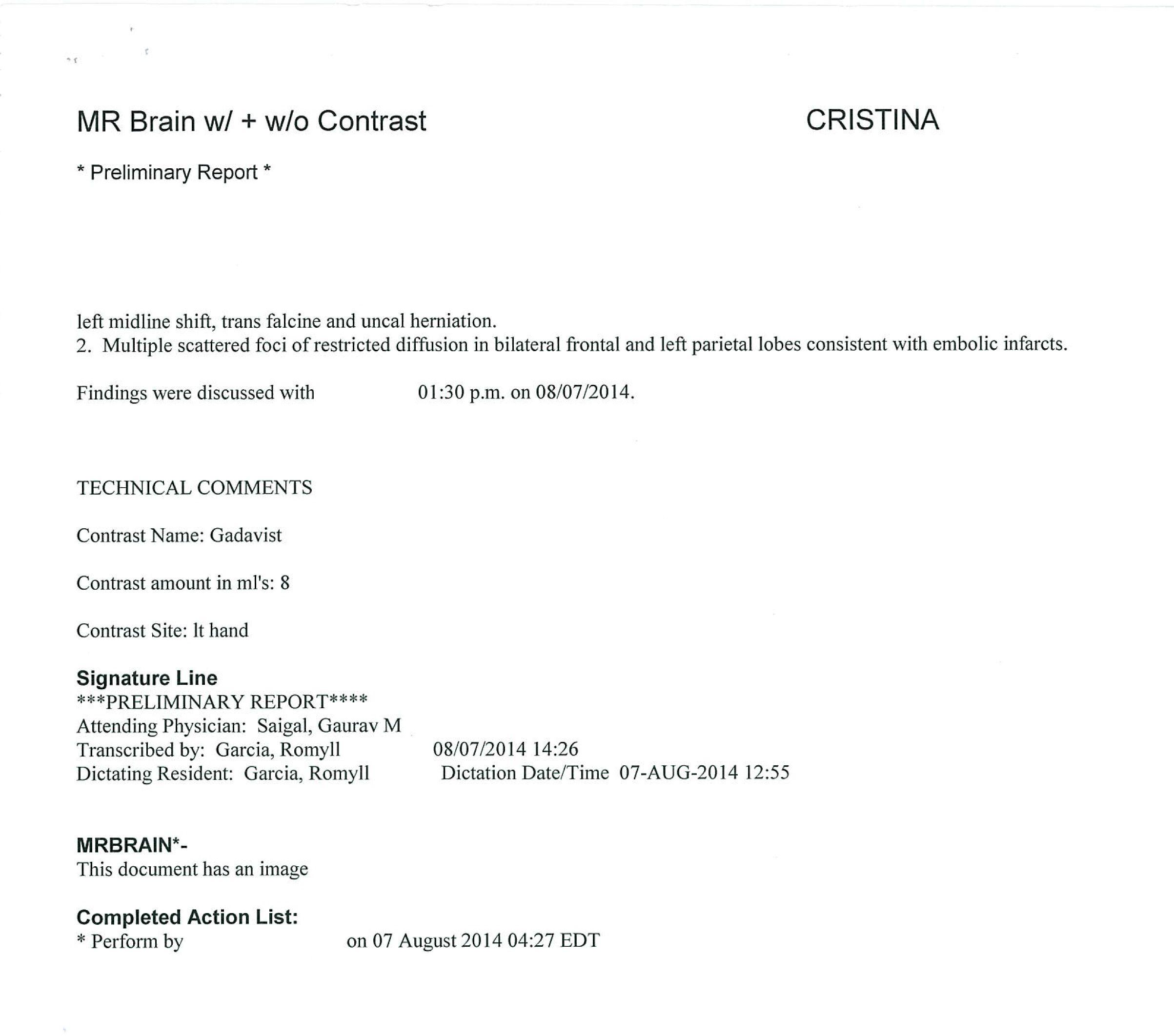 LifEscozul® - Cristina 5 - Cáncer Cerebral