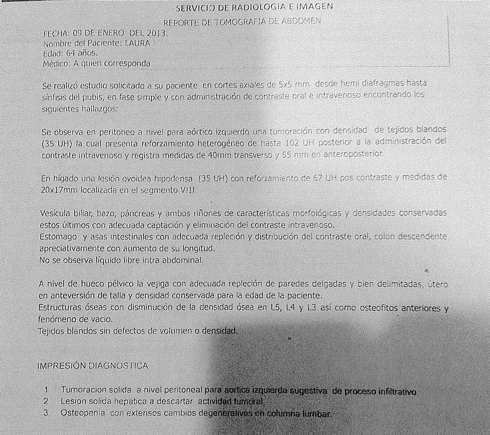 LifEscozul® - Laura 1 - Cáncer de Páncreas