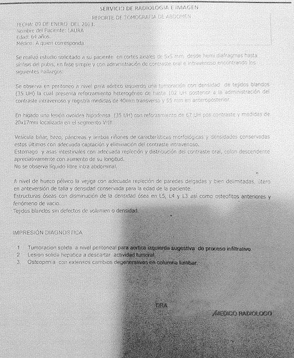 LifEscozul® - Laura 2 - Cáncer de Páncreas