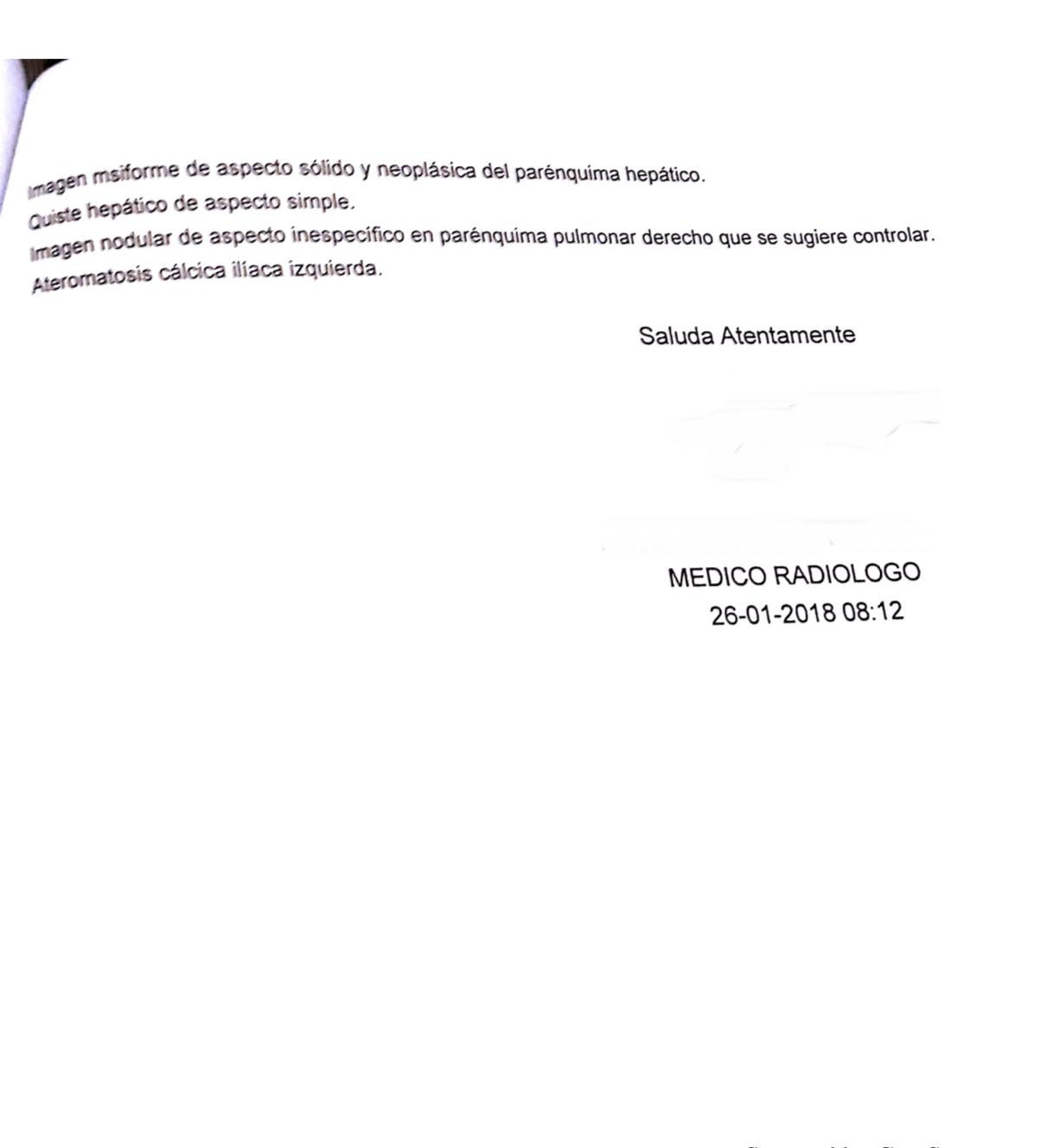 LifEscozul® - S.R. 7 - Cáncer de Hígado