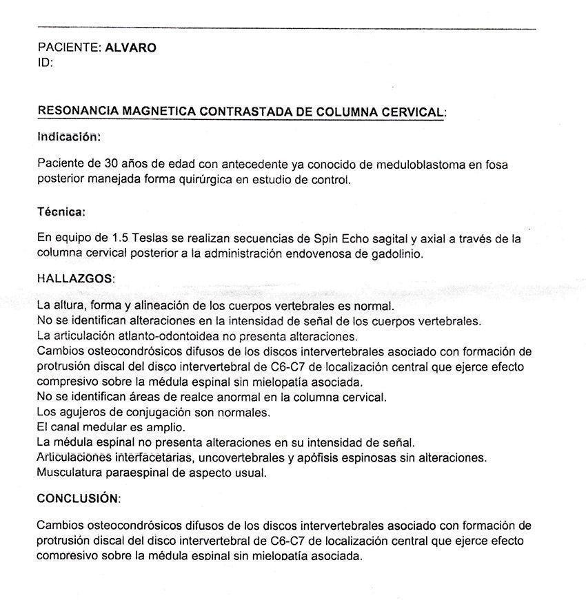 LifEscozul® - Alvaro 11 - Cáncer Cerebral