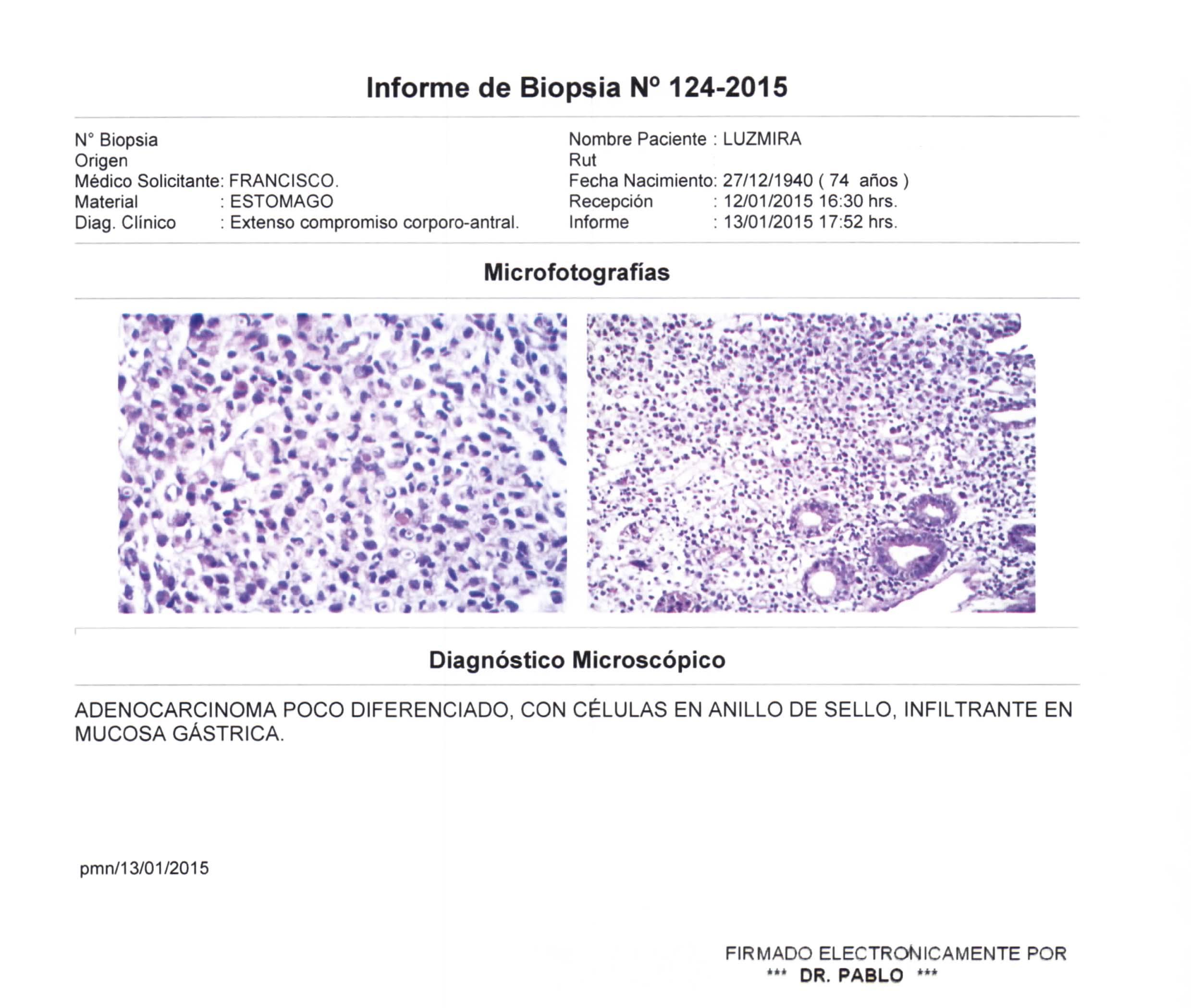 LifEscozul® - Luzmira 12 - Cáncer Gástrico Intestinal