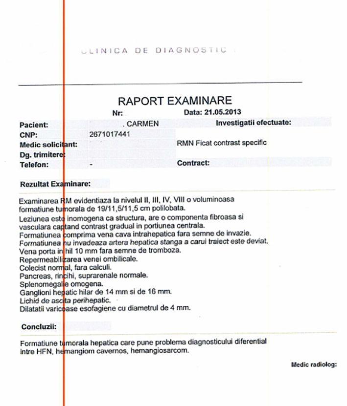 LifEscozul® - Carmen 1 - Cáncer de Hígado