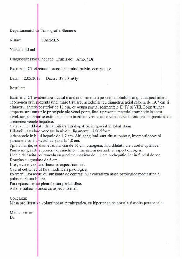 LifEscozul® - Carmen 2 - Cáncer de Hígado