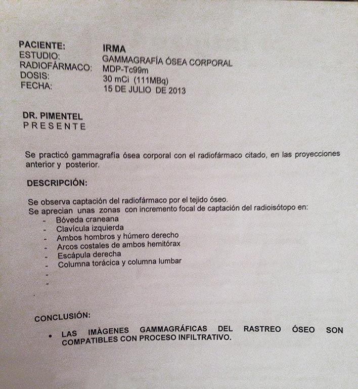 LifEscozul® - Irma 1 - Cáncer de Mámas