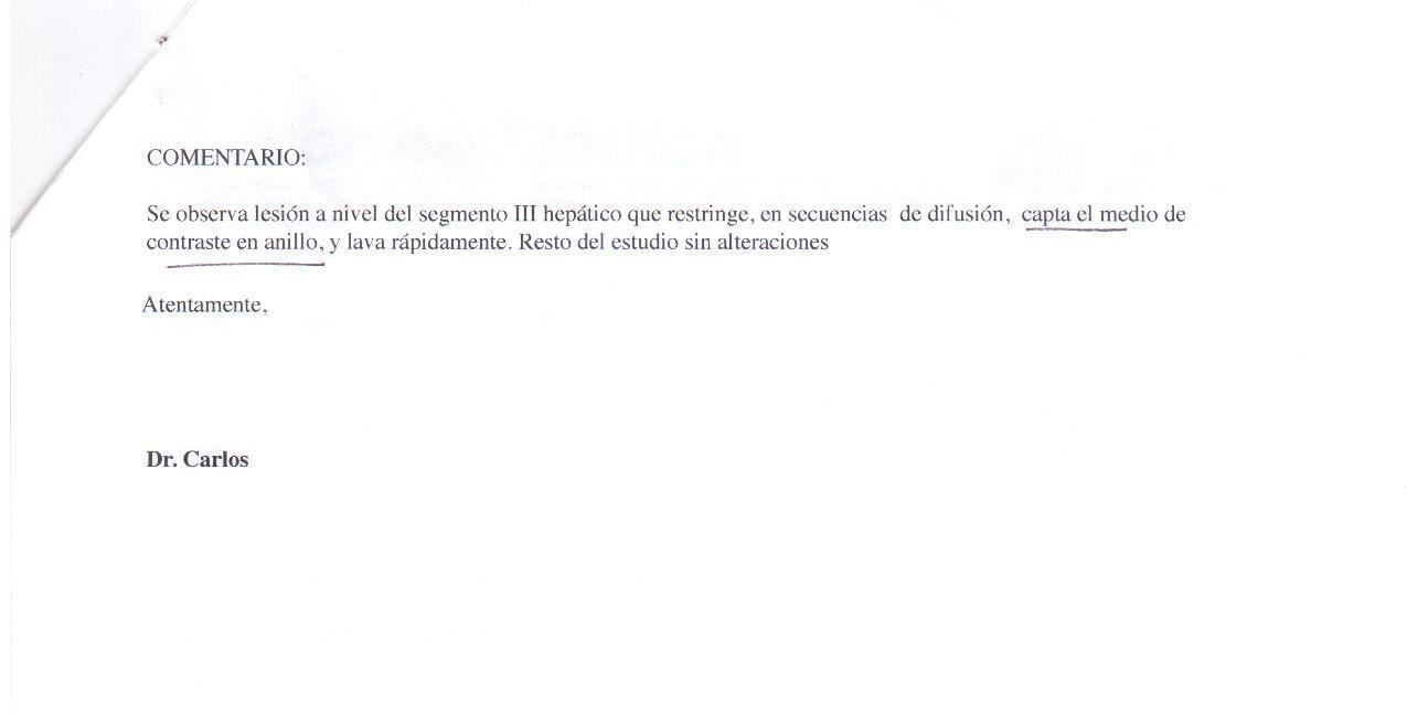 LifEscozul® - María Cristina 1 - Cáncer de Mámas