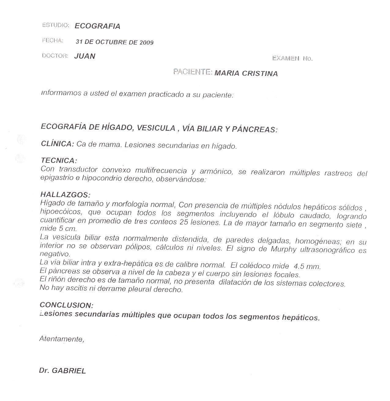 LifEscozul® - María Cristina 2 - Cáncer de Mámas