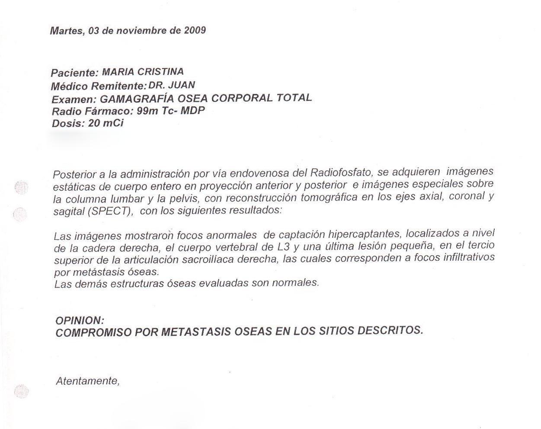 LifEscozul® - María Cristina 3 - Cáncer de Mámas