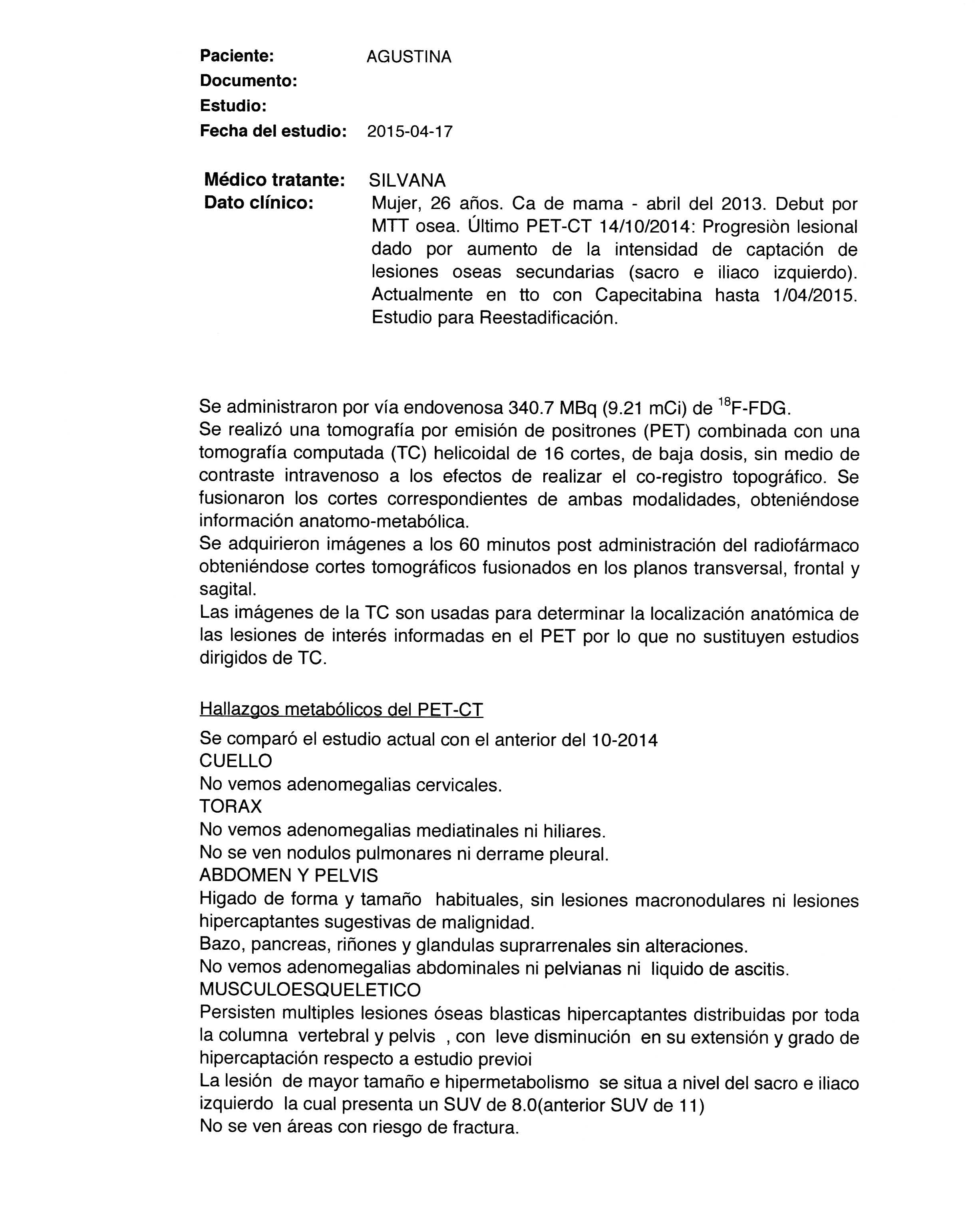LifEscozul® - Agustina 10 - Cáncer de Mámas