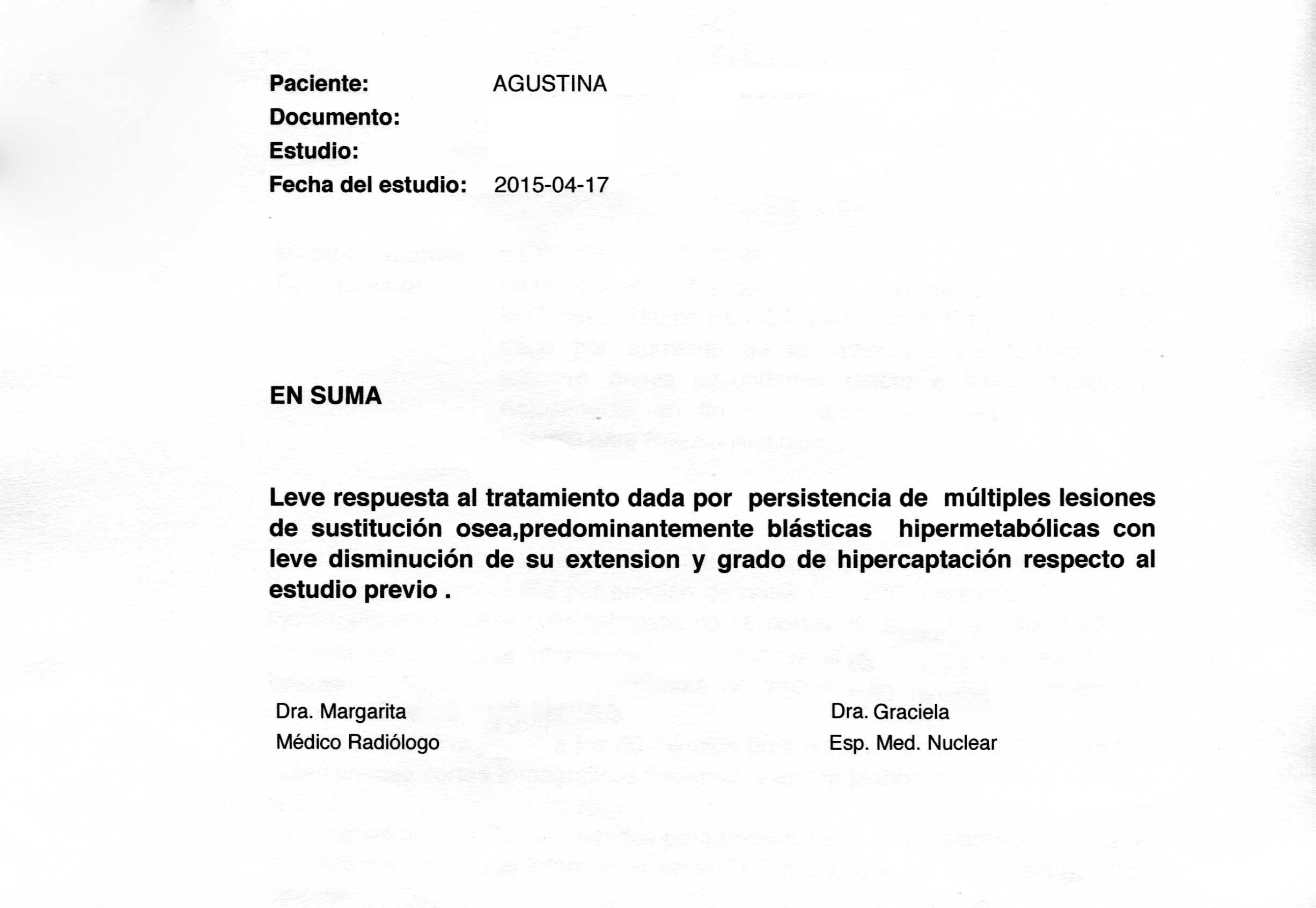 LifEscozul® - Agustina 11 - Cáncer de Mámas