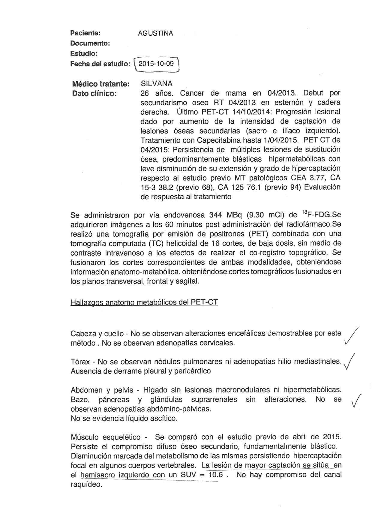 LifEscozul® - Agustina 12 - Cáncer de Mámas