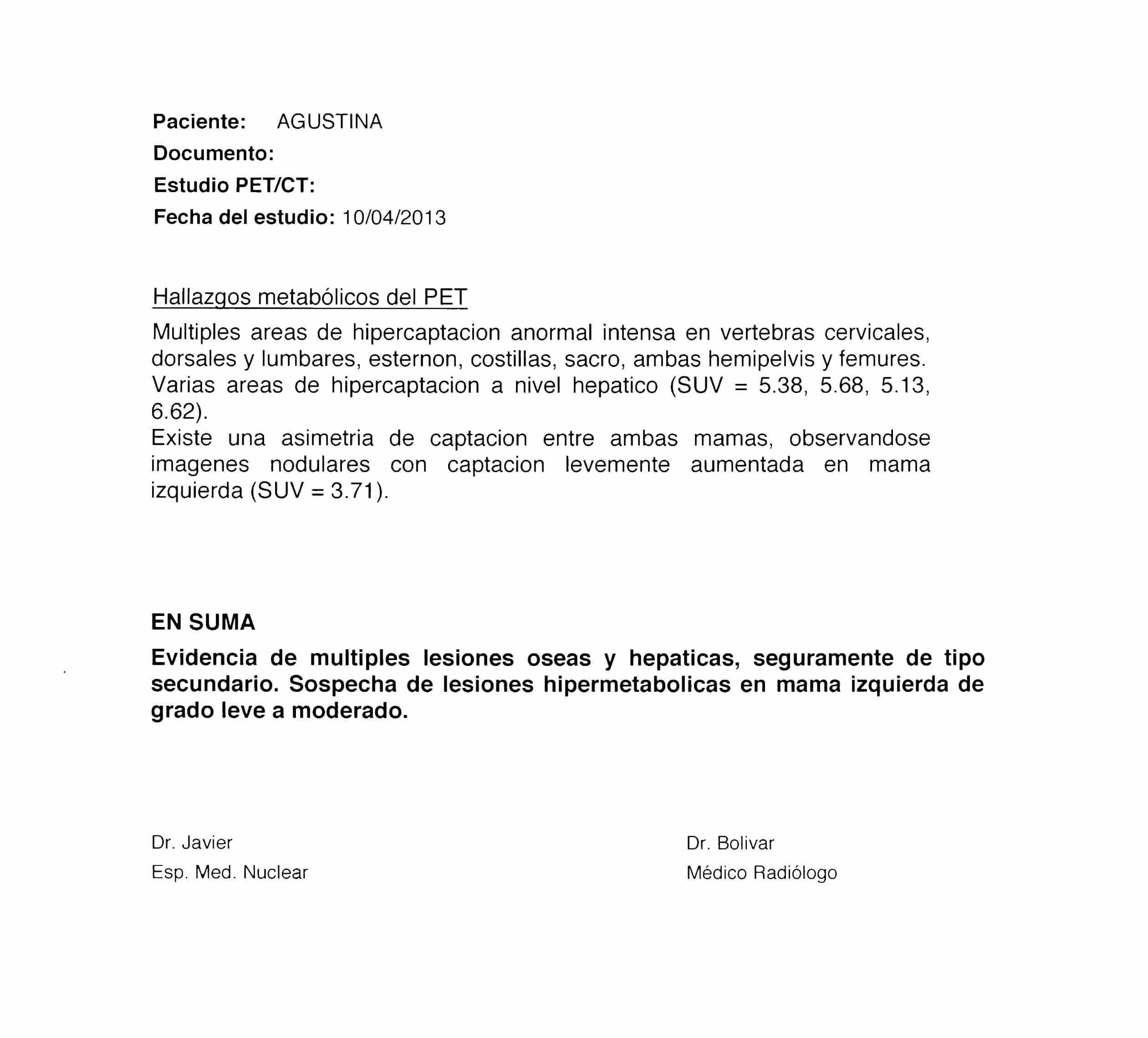 LifEscozul® - Agustina 7 - Cáncer de Mámas