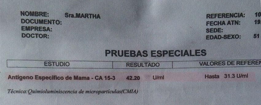 LifEscozul® - Martha 7 - Cáncer de Mámas