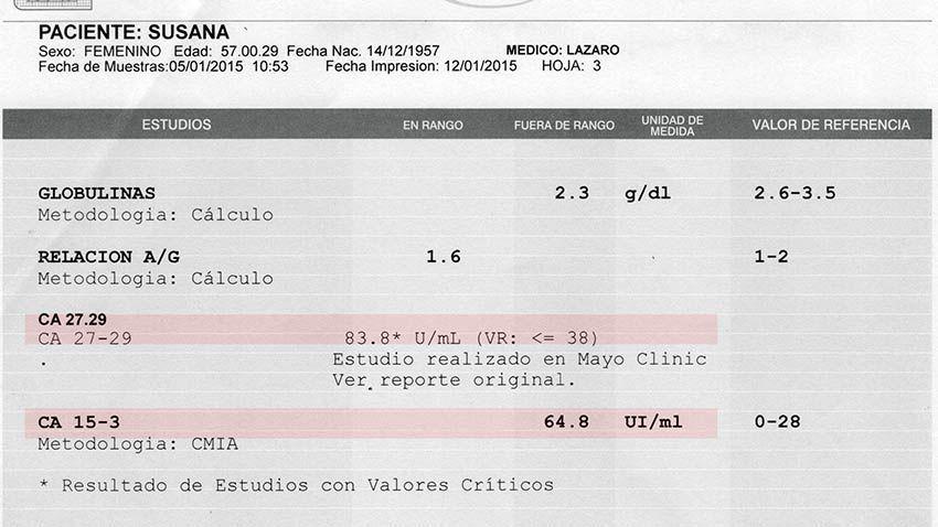 LifEscozul® - Susana 1 - Cáncer de Mámas
