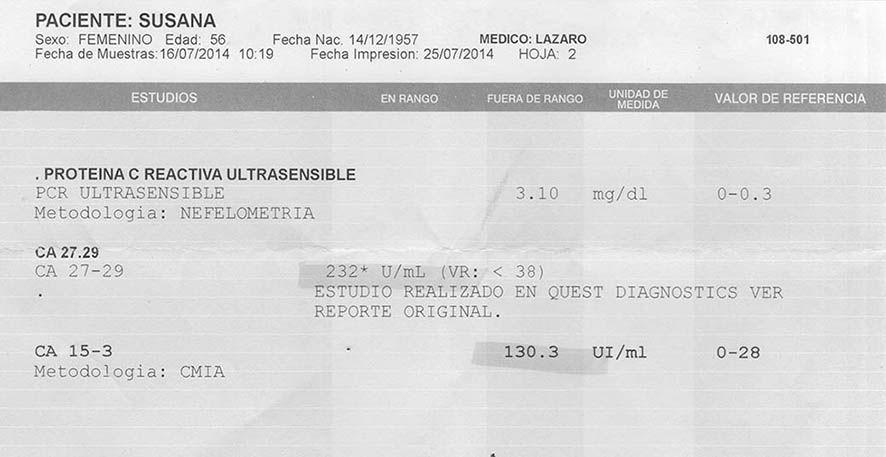 LifEscozul® - Susana 5 - Cáncer de Mámas