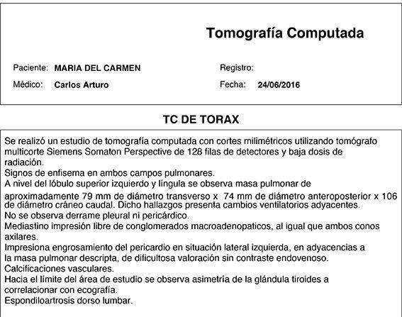 LifEscozul® - María del Carmen 1 - Cáncer Maxilar