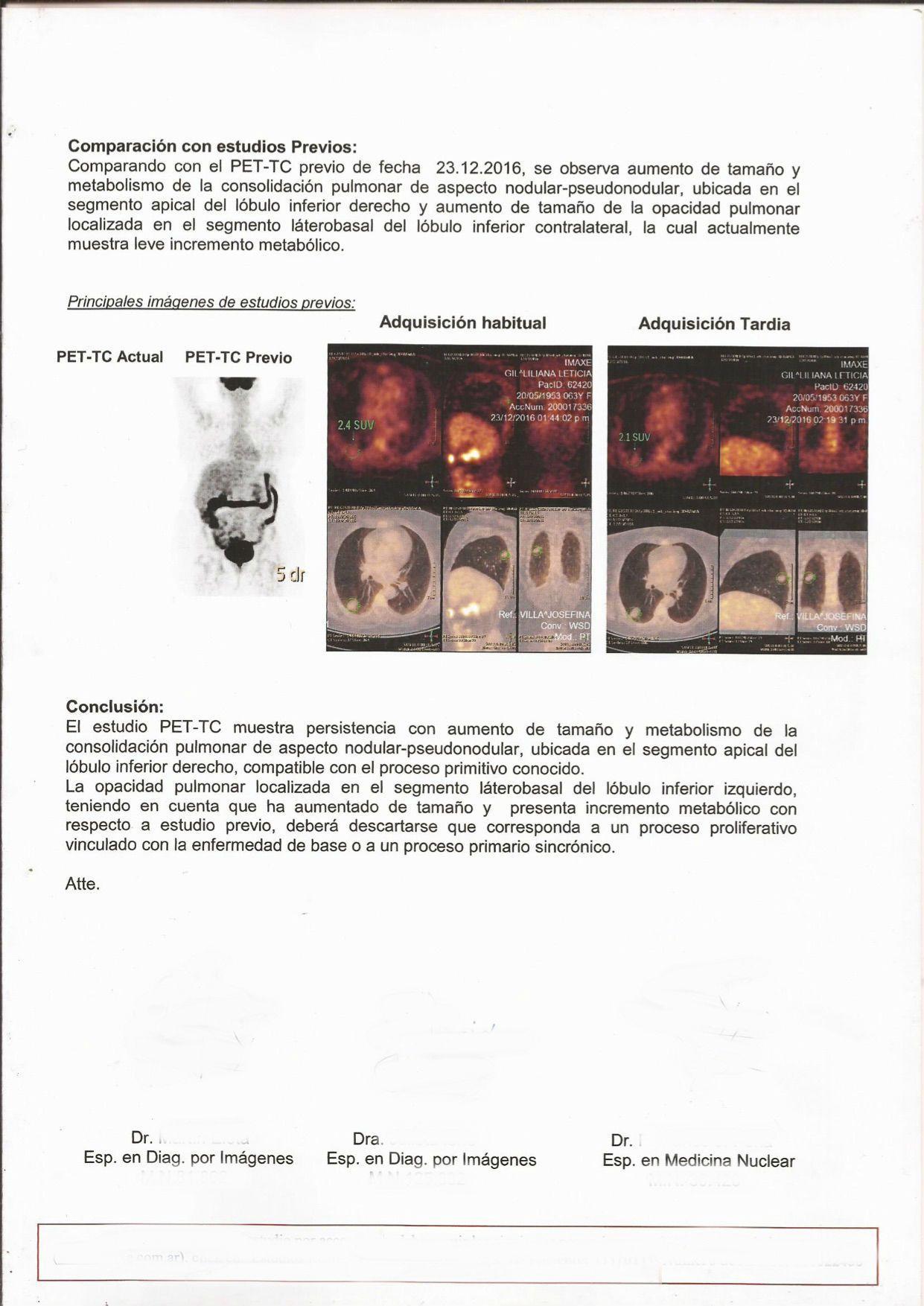LifEscozul® - L.L.G 4 - Cáncer de Pulmon