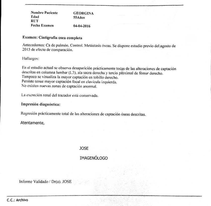LifEscozul® - Carmen 8 - Cáncer de Pulmon