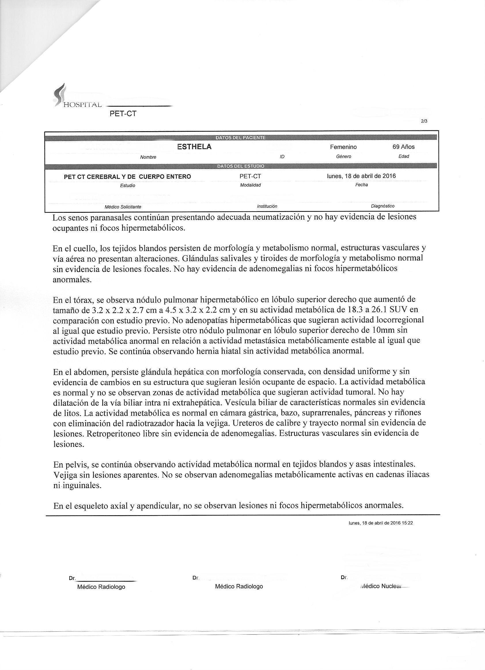 LifEscozul® - Esthela 6 - Cáncer de Pulmon