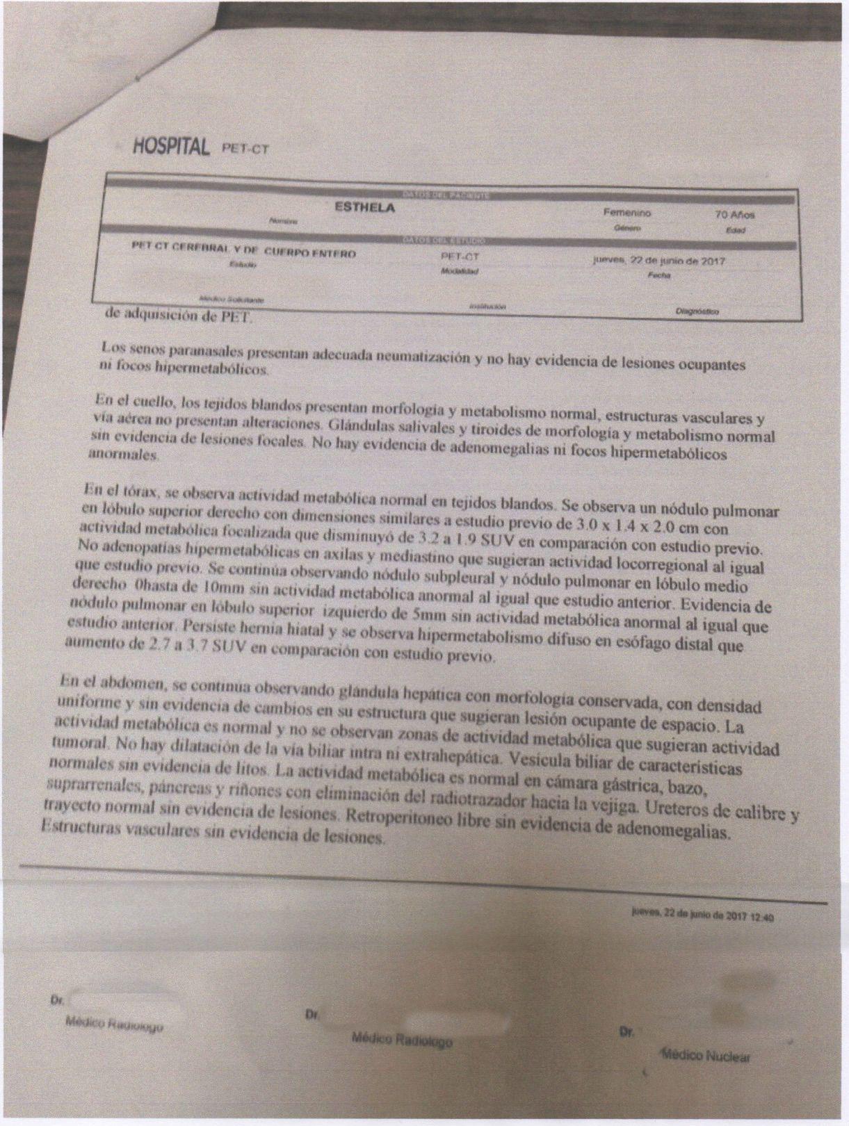 LifEscozul® - Esthela 9 - Cáncer de Pulmon