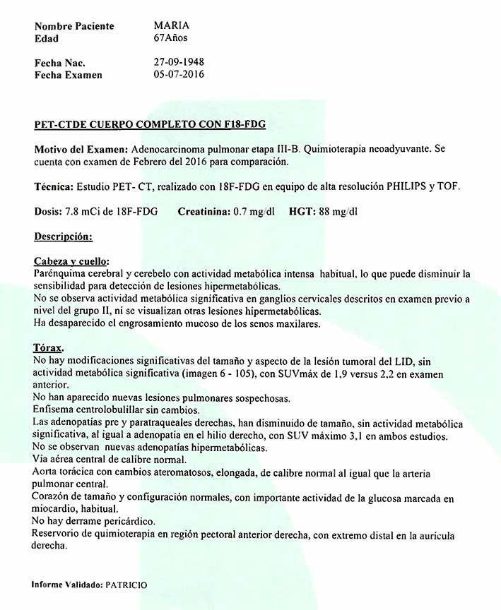 LifEscozul® - María 1 - Cáncer de Pulmon