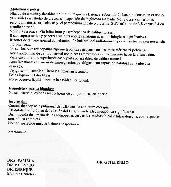 LifEscozul® - María 10 - Cáncer de Pulmon