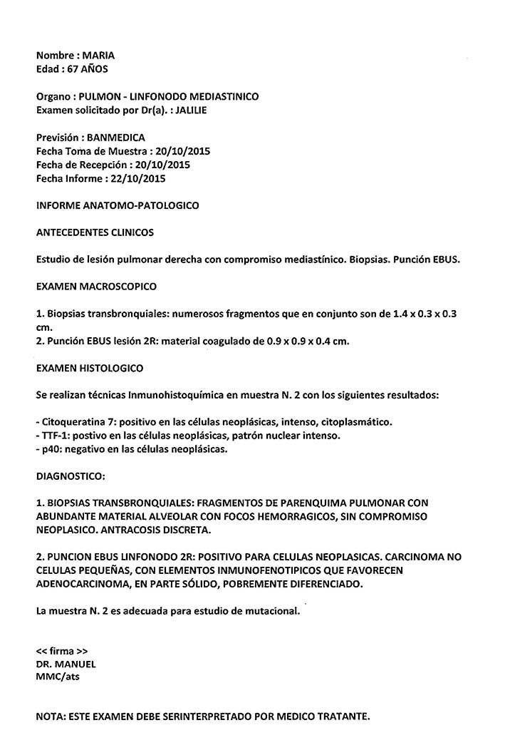 LifEscozul® - María 6 - Cáncer de Pulmon