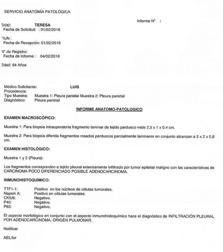LifEscozul® - Teresa 10 - Cáncer de Pulmon