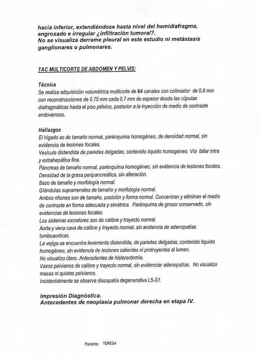 LifEscozul® - Teresa 12 - Cáncer de Pulmon