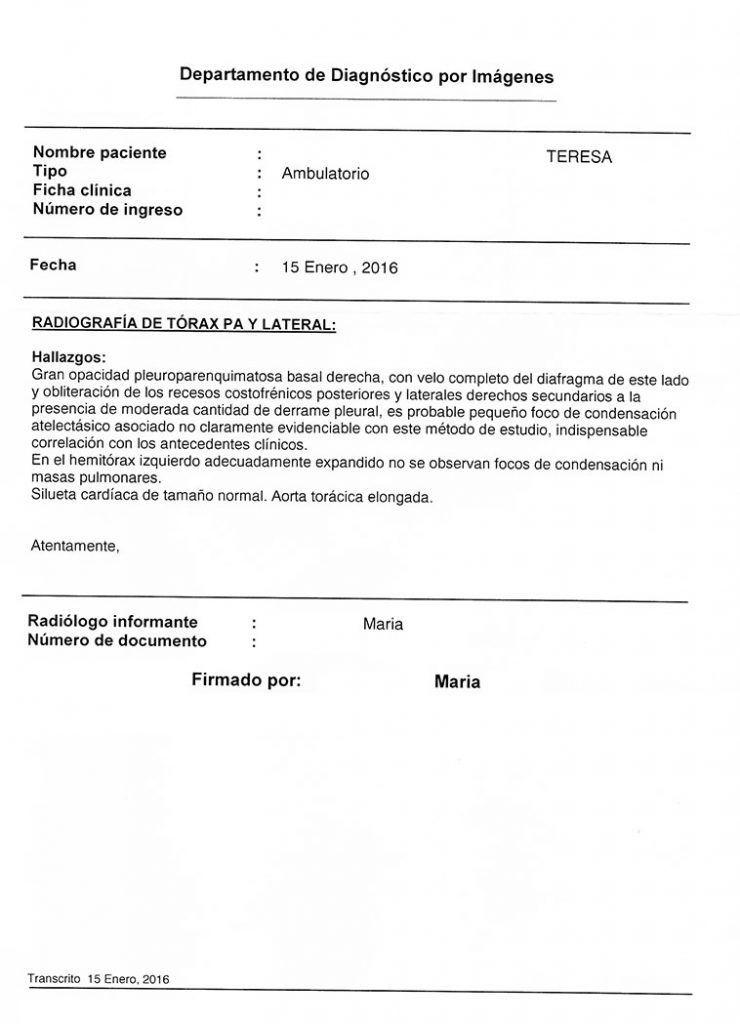 LifEscozul® - Teresa 6 - Cáncer de Pulmon