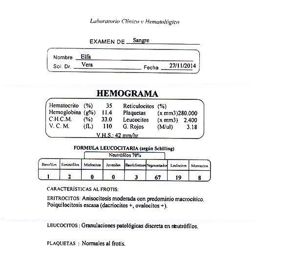 LifEscozul® - Elsa 4 - Cáncer de Útero y Cervix