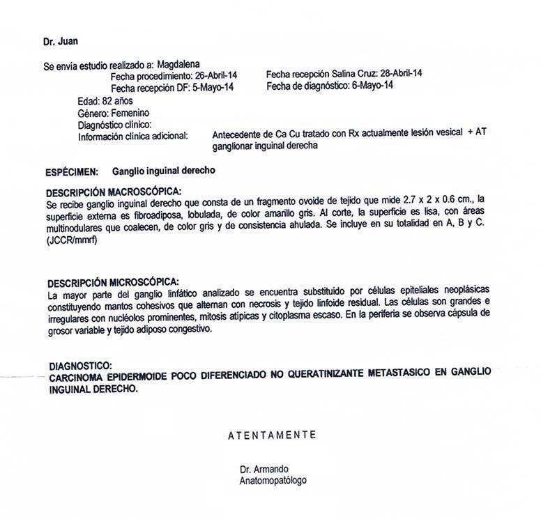LifEscozul® - Magdalena 1 - Cáncer de Útero y Cervix