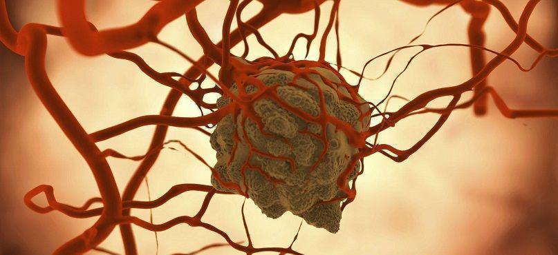 LifEscozul® - Cáncer de amígdala