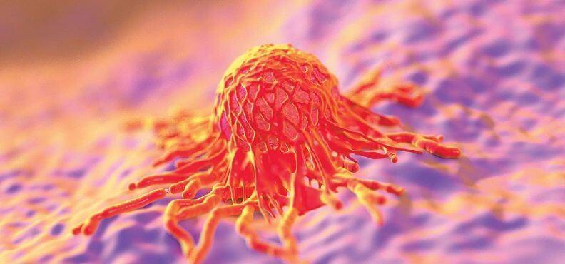 LifEscozul® - Cáncer de ovario