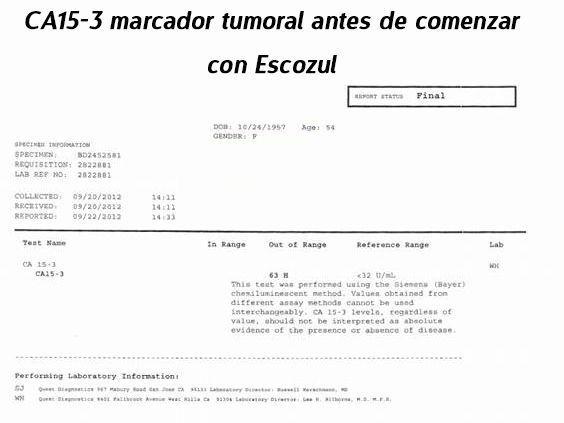 LifEscozul® - Josefina Romero 4 - Cáncer de Mámas