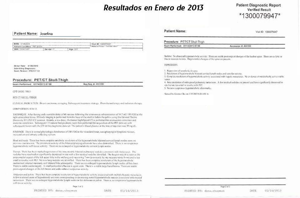 LifEscozul® - Josefina Romero 7 - Cáncer de Mámas