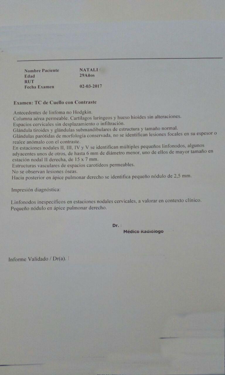LifEscozul® - Natali 2 - Linfómas