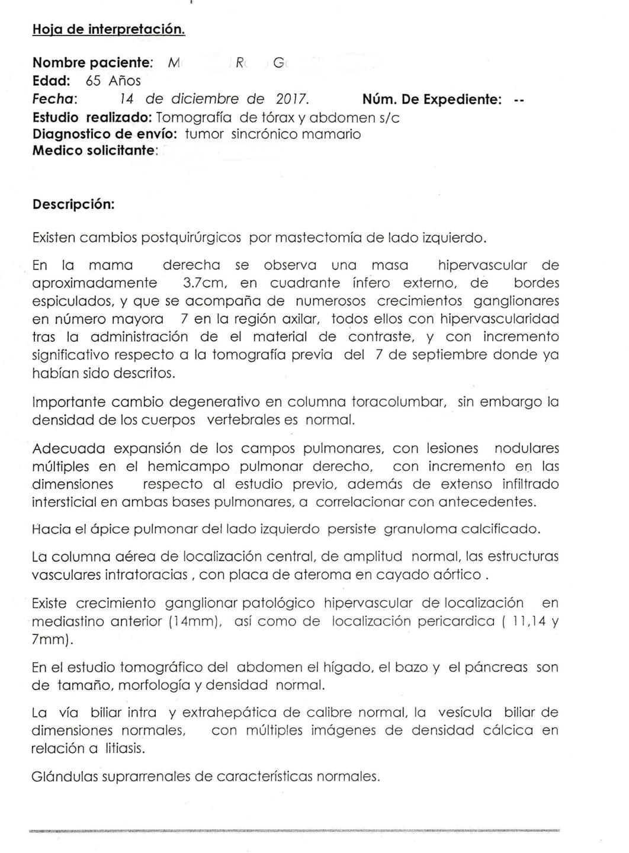 LifEscozul® - M.R.G. 2 - Cáncer de Mámas