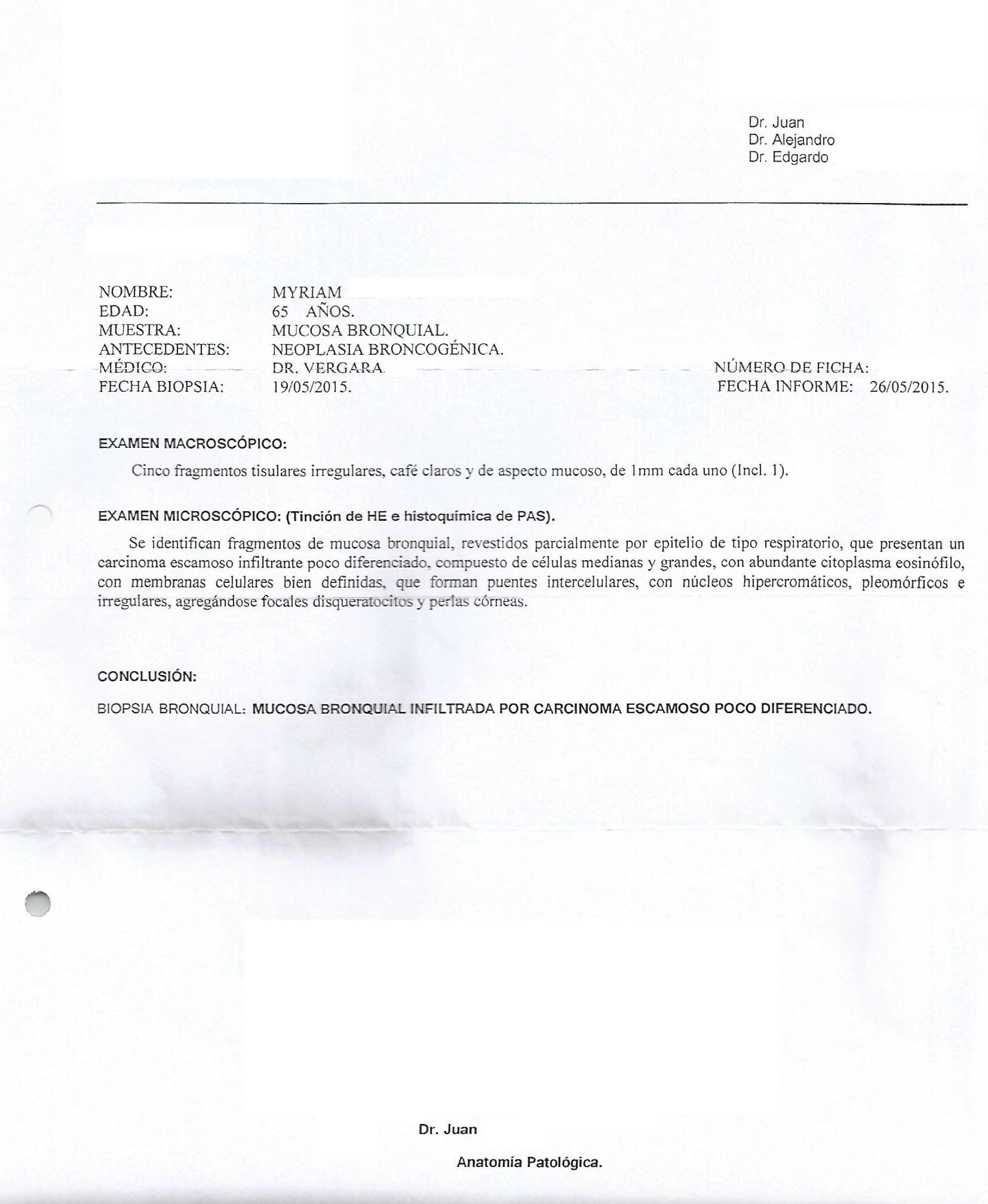LifEscozul® - Miriam 3 - Cáncer de Pulmon