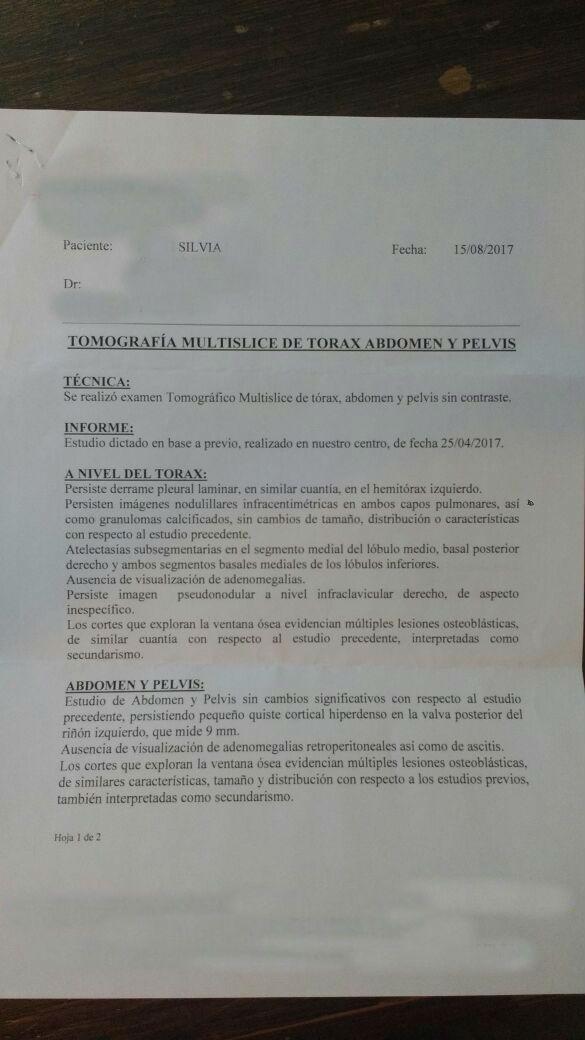 LifEscozul® - Silvia 13 - Cáncer de Mámas