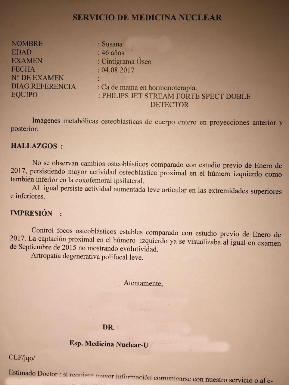 LifEscozul® - Susana 44a 5 - Cáncer de Mámas