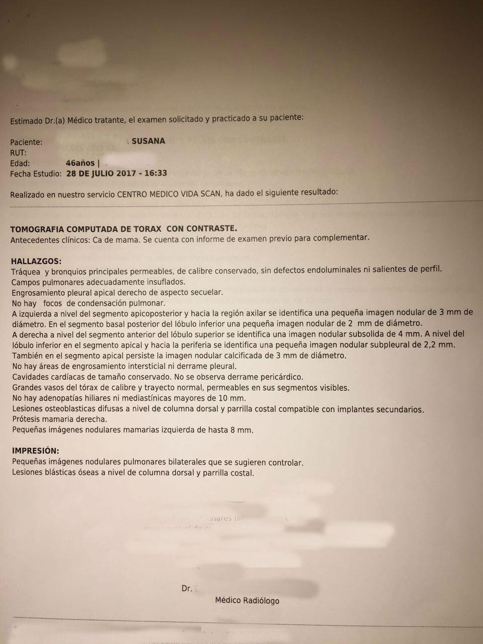 LifEscozul® - Susana 44a 6 - Cáncer de Mámas