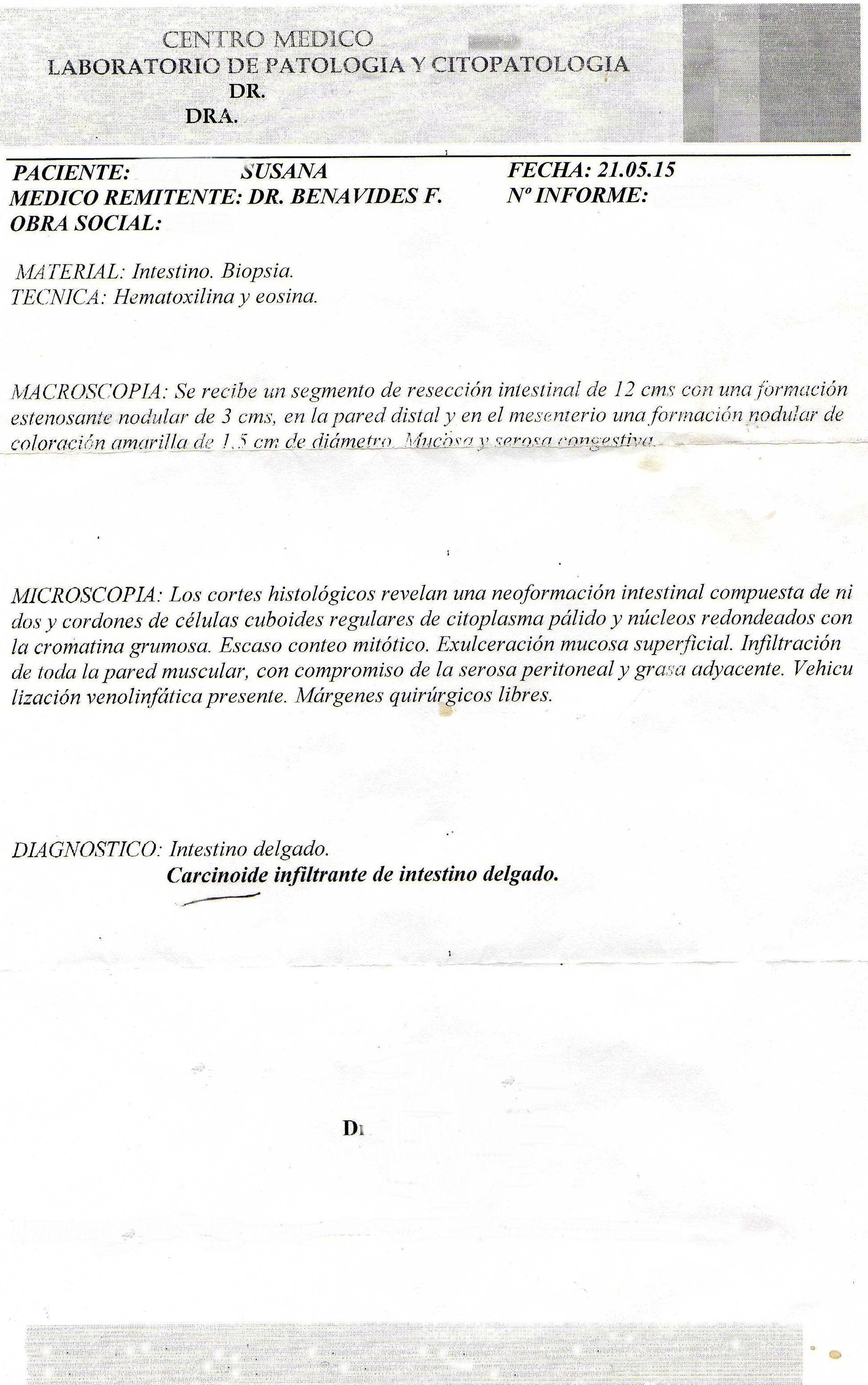 LifEscozul® - Susana 2 - Cáncer Gástrico Intestinal
