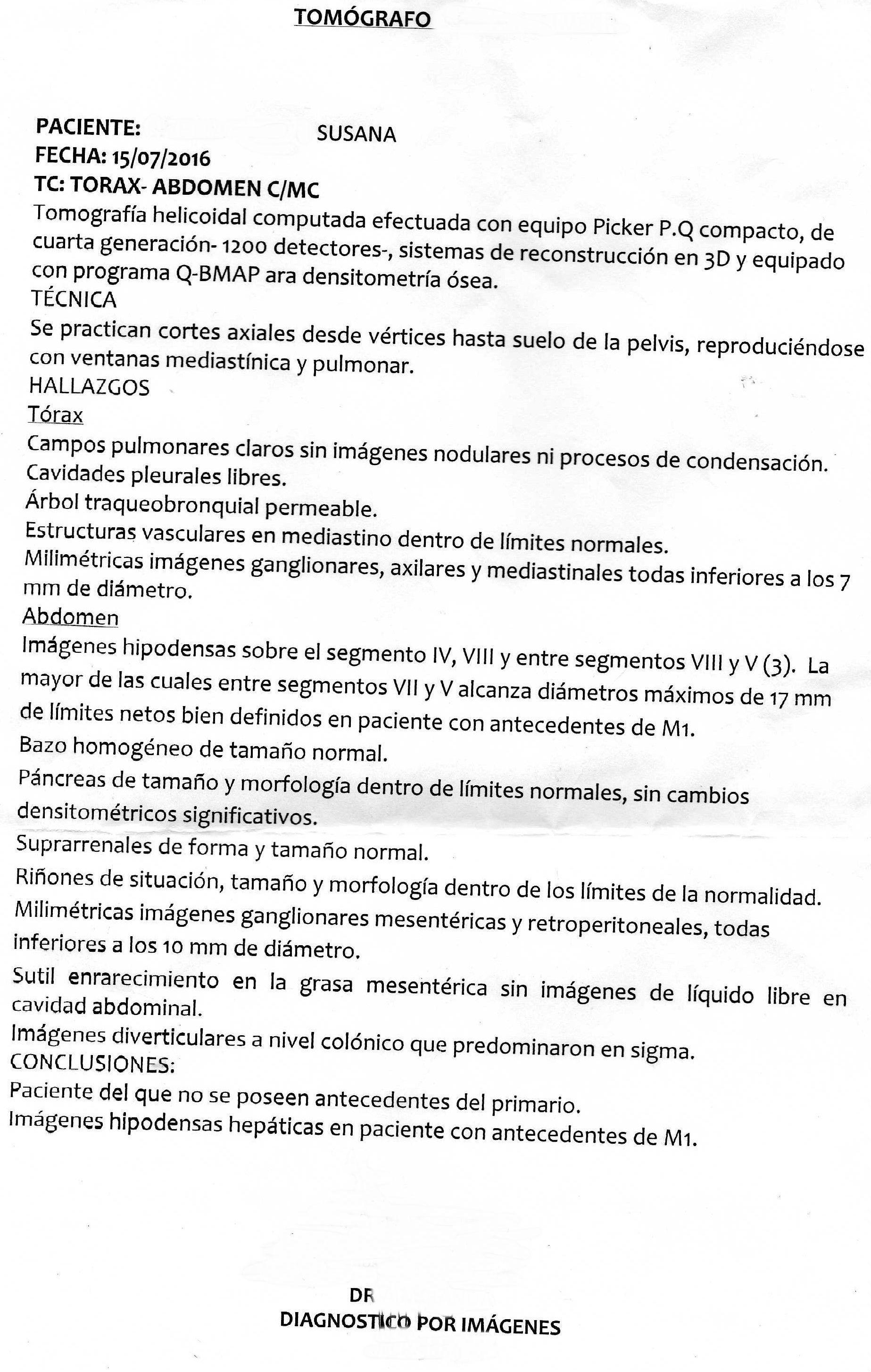 LifEscozul® - Susana 3 - Cáncer Gástrico Intestinal